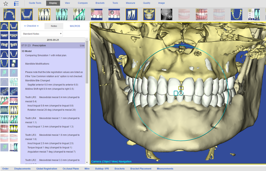 example of root and bone visualisation in orthodontic treatment simulation supported by suresmileTM